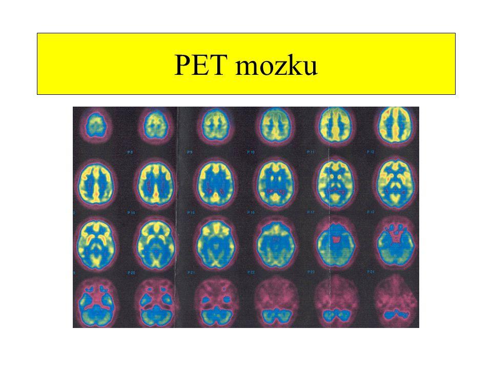 PET mozku
