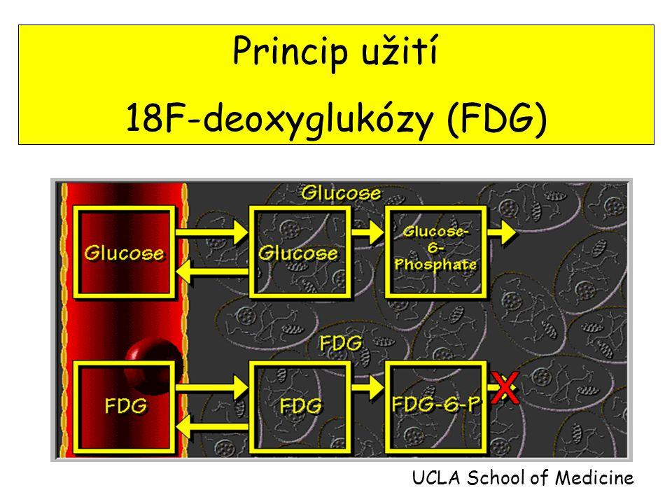 Princip užití 18F-deoxyglukózy (FDG) UCLA School of Medicine