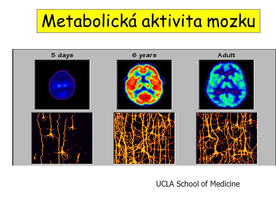 Metabolická aktivita mozku UCLA School of Medicine