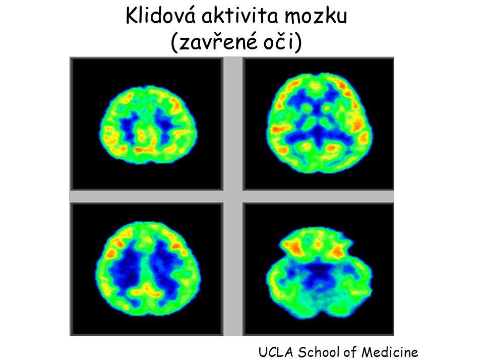 Klidová aktivita mozku (zavřené oči) UCLA School of Medicine