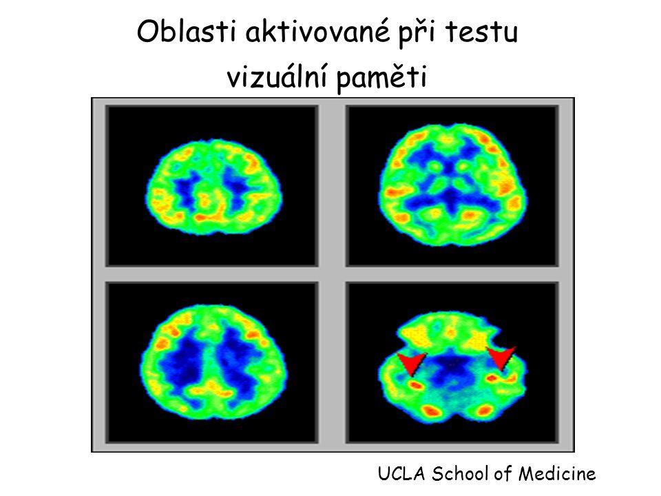 Oblasti aktivované při testu vizuální paměti UCLA School of Medicine