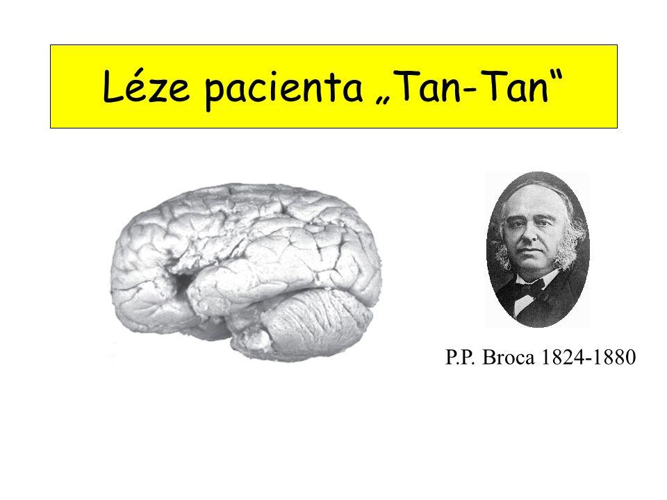 """Léze pacienta """"Tan-Tan P.P. Broca 1824-1880"""