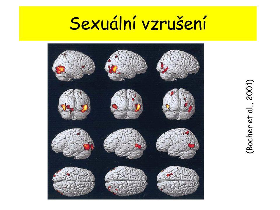 Sexuální vzrušení (Bocher et al., 2001)