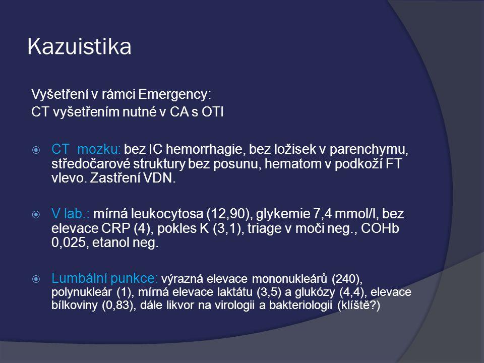 Kazuistika Vyšetření v rámci Emergency: CT vyšetřením nutné v CA s OTI  CT mozku: bez IC hemorrhagie, bez ložisek v parenchymu, středočarové struktury bez posunu, hematom v podkoží FT vlevo.