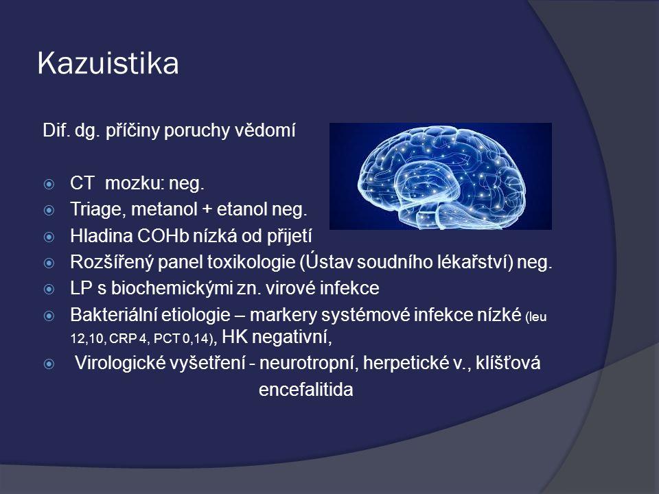 Kazuistika Dif.dg. příčiny poruchy vědomí  CT mozku: neg.