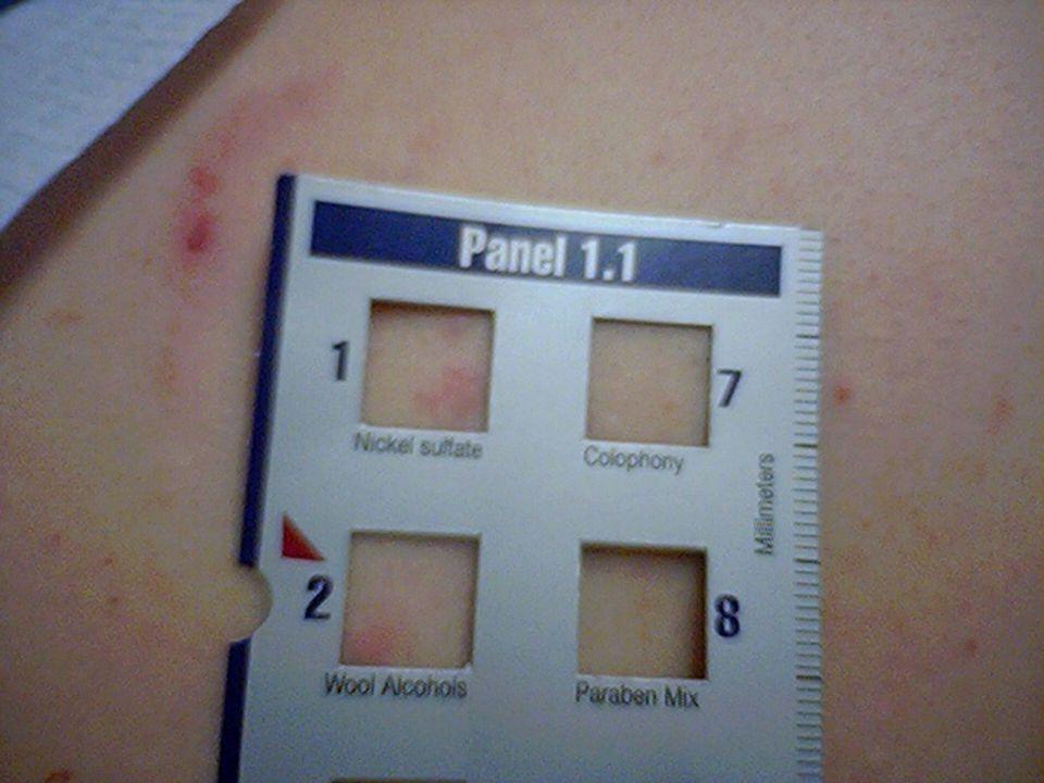 Lokální anestetika l Diagnostika - kožní testy - často falešně pozitivní - provokační test