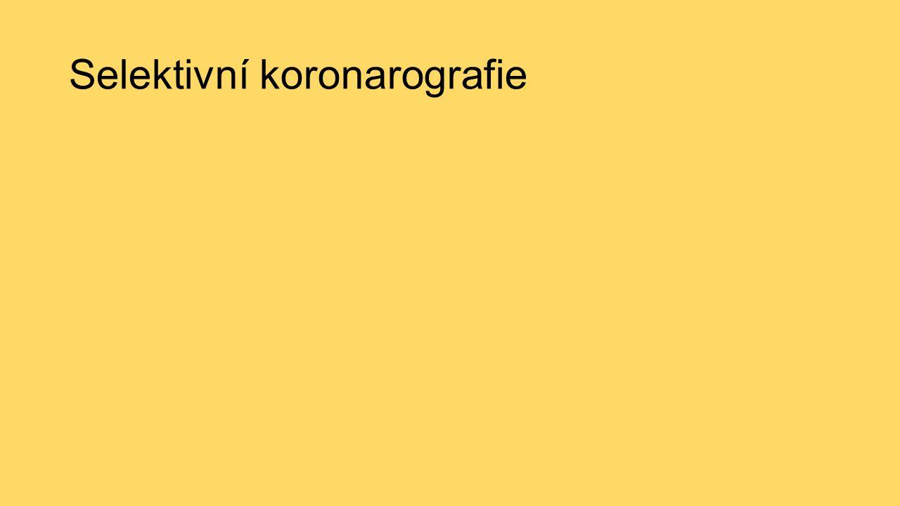 Selektivní koronarografie