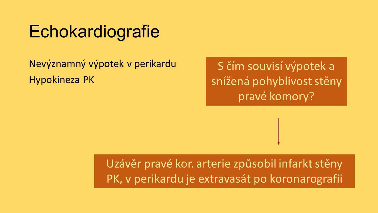 Echokardiografie Nevýznamný výpotek v perikardu Hypokineza PK S čím souvisí výpotek a snížená pohyblivost stěny pravé komory? Uzávěr pravé kor. arteri