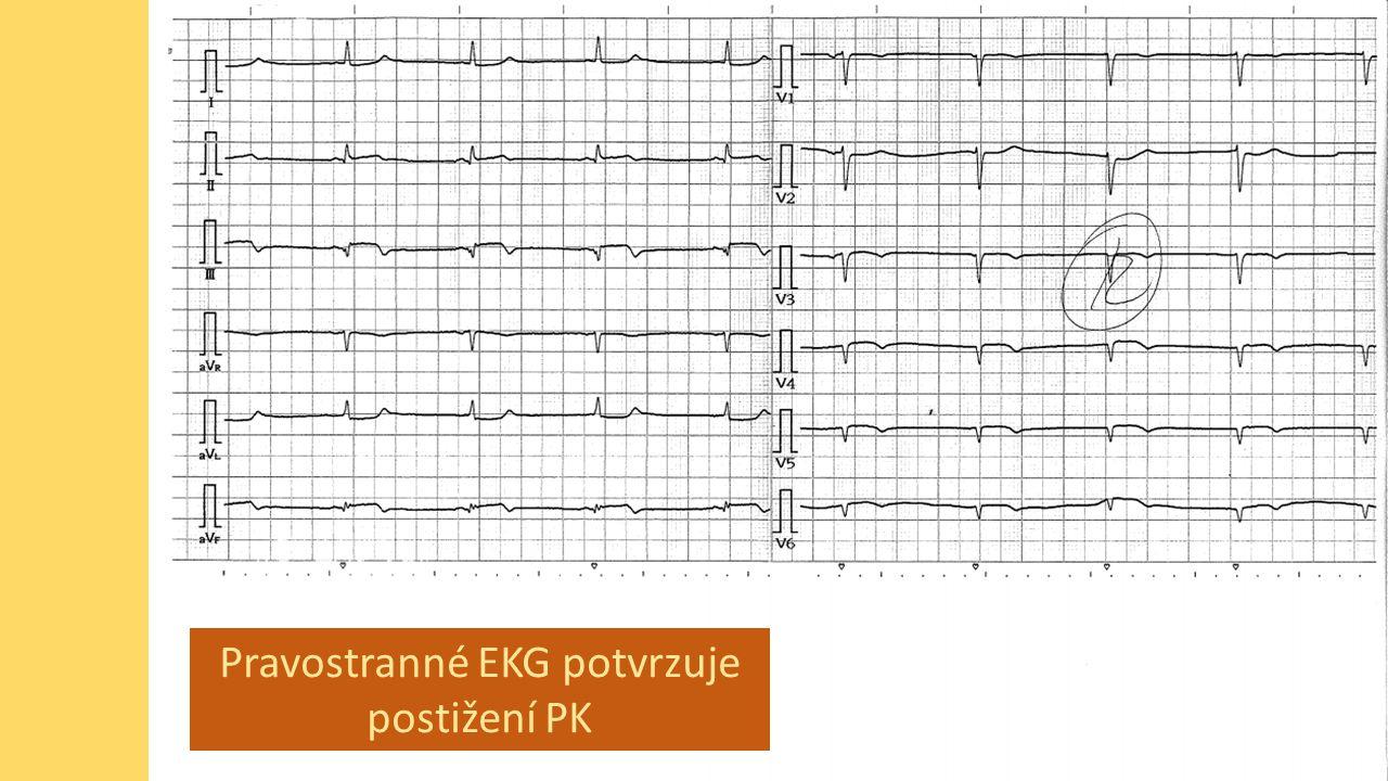 Pravostranné EKG potvrzuje postižení PK