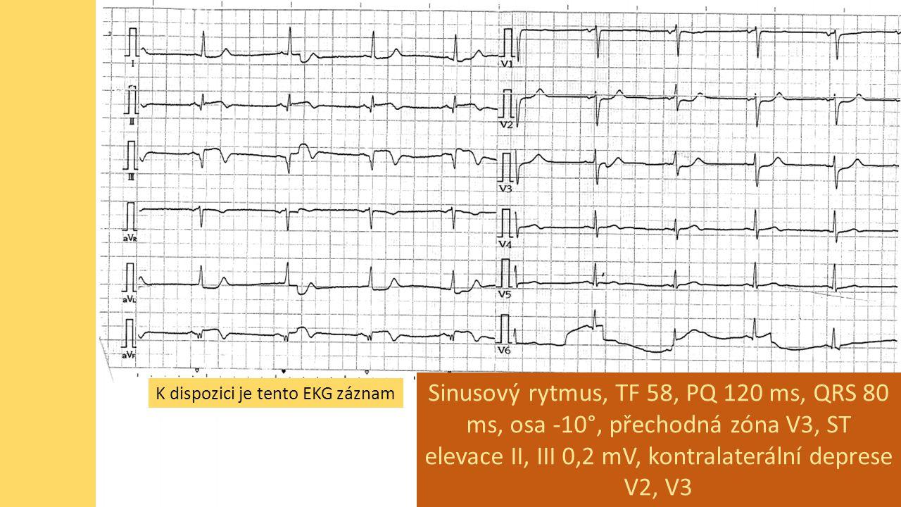 K dispozici je tento EKG záznam Sinusový rytmus, TF 58, PQ 120 ms, QRS 80 ms, osa -10°, přechodná zóna V3, ST elevace II, III 0,2 mV, kontralaterální