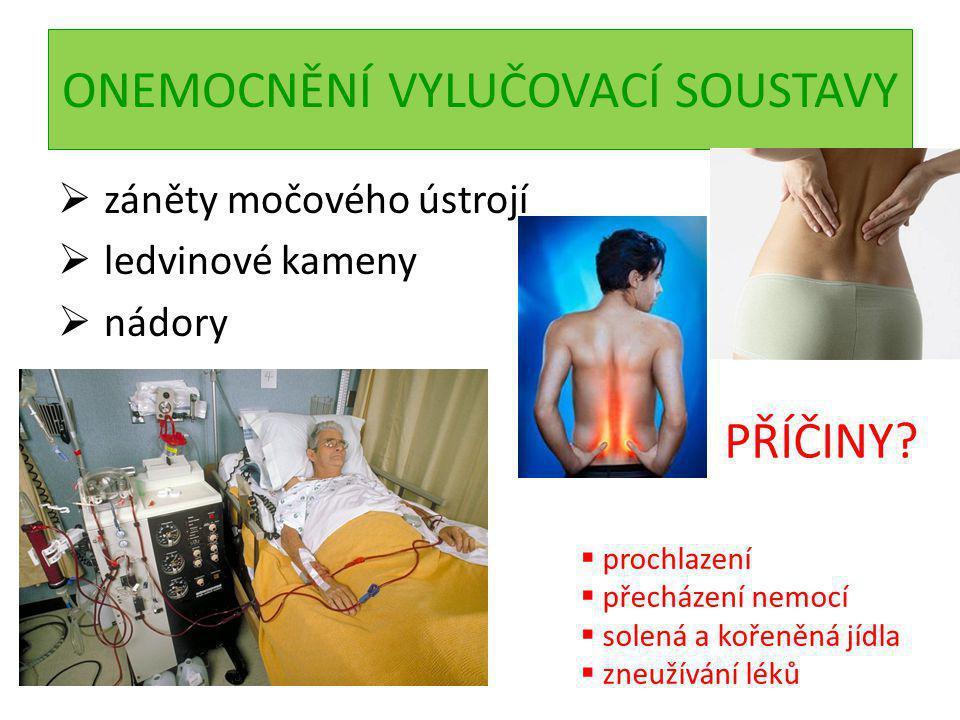 ONEMOCNĚNÍ VYLUČOVACÍ SOUSTAVY  záněty močového ústrojí  ledvinové kameny  nádory PŘÍČINY?  prochlazení  přecházení nemocí  solená a kořeněná jí