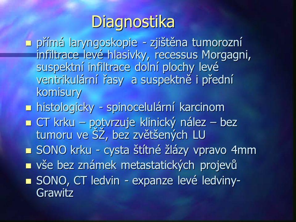 Diagnostika n přímá laryngoskopie - zjištěna tumorozní infiltrace levé hlasivky, recessus Morgagni, suspektní infiltrace dolní plochy levé ventrikulární řasy a suspektně i přední komisury n histologicky - spinocelulární karcinom n CT krku – potvrzuje klinický nález – bez tumoru ve ŠŽ, bez zvětšených LU n SONO krku - cysta štítné žlázy vpravo 4mm n vše bez známek metastatických projevů n SONO, CT ledvin - expanze levé ledviny- Grawitz