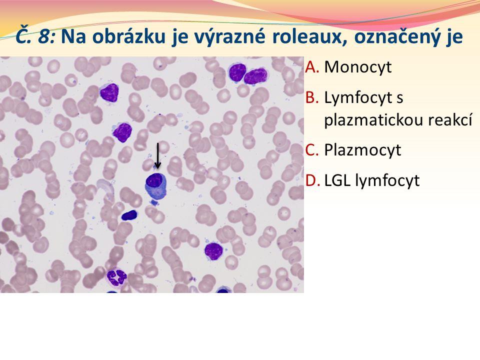 Č. 8: Na obrázku je výrazné roleaux, označený je A.Monocyt B.Lymfocyt s plazmatickou reakcí C.Plazmocyt D.LGL lymfocyt