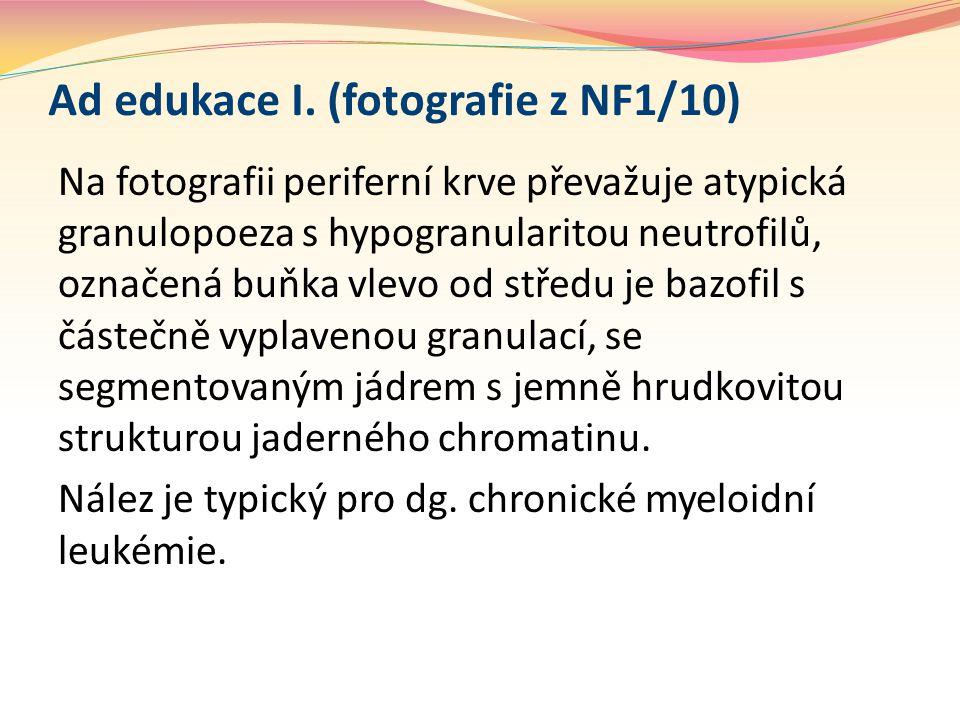 Ad edukace I. (fotografie z NF1/10) Na fotografii periferní krve převažuje atypická granulopoeza s hypogranularitou neutrofilů, označená buňka vlevo o
