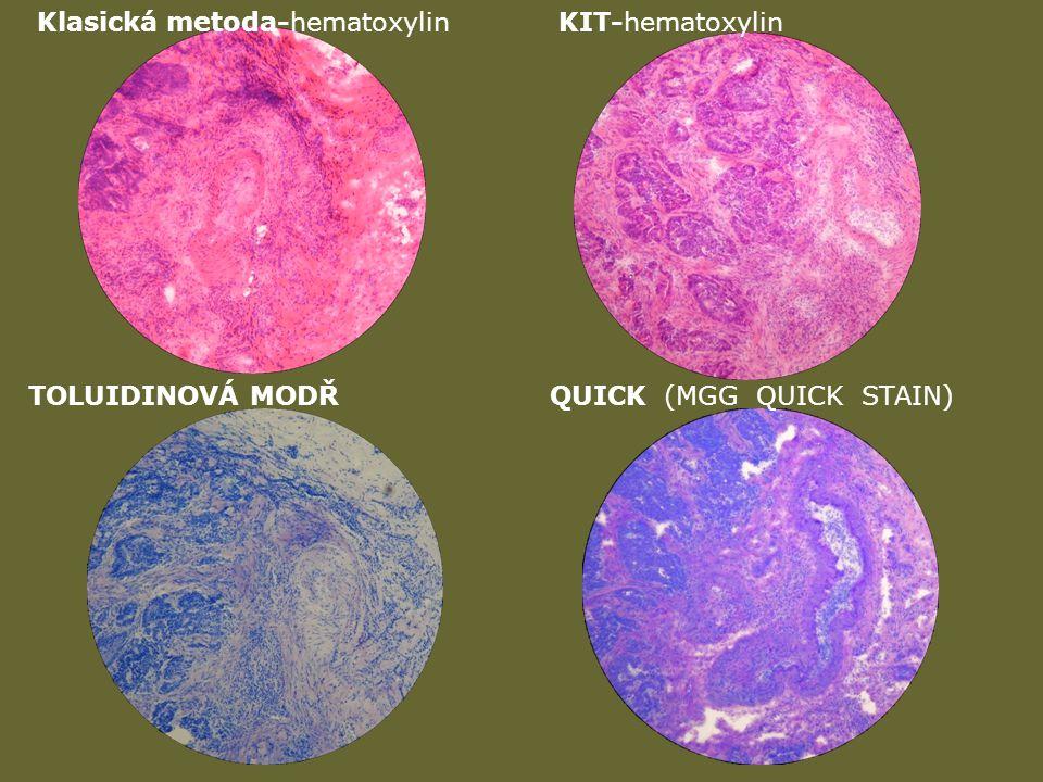 Klasická metoda-hematoxylinKIT-hematoxylin TOLUIDINOVÁ MODŘQUICK (MGG QUICK STAIN)