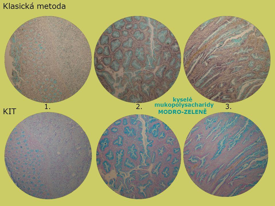 kyselé mukopolysacharidy MODRO-ZELENĚ Klasická metoda KIT 1.2.3.