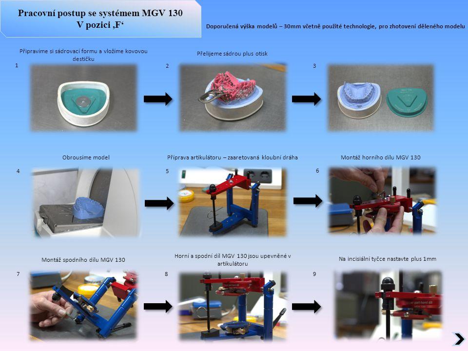 1 3 2 8 4 6 7 5 9 Připravíme si sádrovací formu a vložíme kovovou destičku Přelijeme sádrou plus otisk Obrousíme modelPříprava artikulátoru – zaaretov