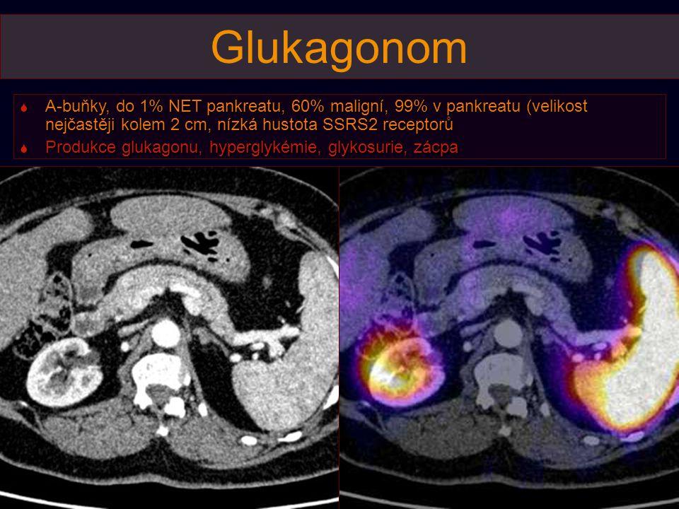 """""""Karcinoid  Častoje NET popisován z biopsií jaterních metastáz jako karcinoid, ve skutečnosti jde o NET pankreatu bez produkce peptidů nebo s produkcí pankreatického polypeptidu, správný název tumoru je  hormonálně neaktivní NET nebo PPom"""