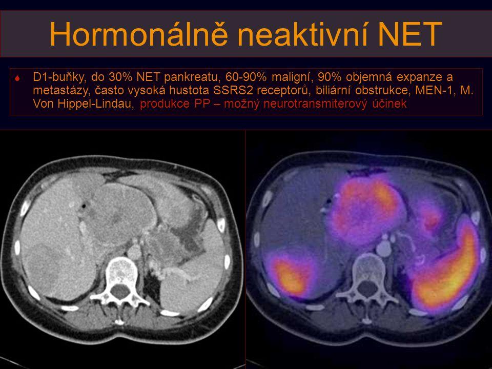 Hormonálně neaktivní NET  D1-buňky, do 30% NET pankreatu, 60-90% maligní, 90% objemná expanze a metastázy, často vysoká hustota SSRS2 receptorů, bili