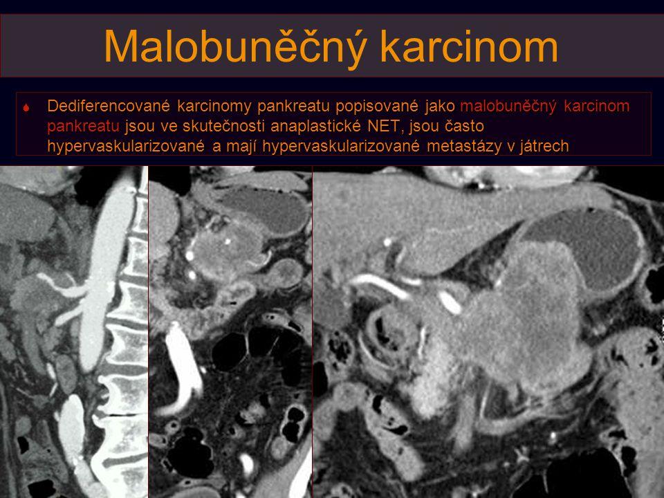 Malobuněčný karcinom  Dediferencované karcinomy pankreatu popisované jako malobuněčný karcinom pankreatu jsou ve skutečnosti anaplastické NET, jsou často hypervaskularizované a mají hypervaskularizované metastázy v játrech
