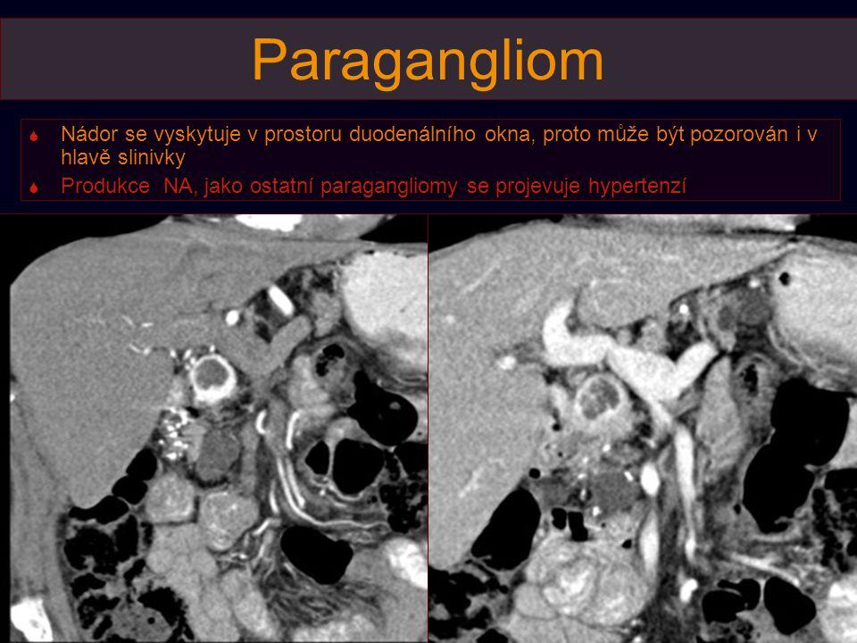 Paragangliom  Nádor se vyskytuje v prostoru duodenálního okna, proto může být pozorován i v hlavě slinivky  Produkce NA, jako ostatní paragangliomy