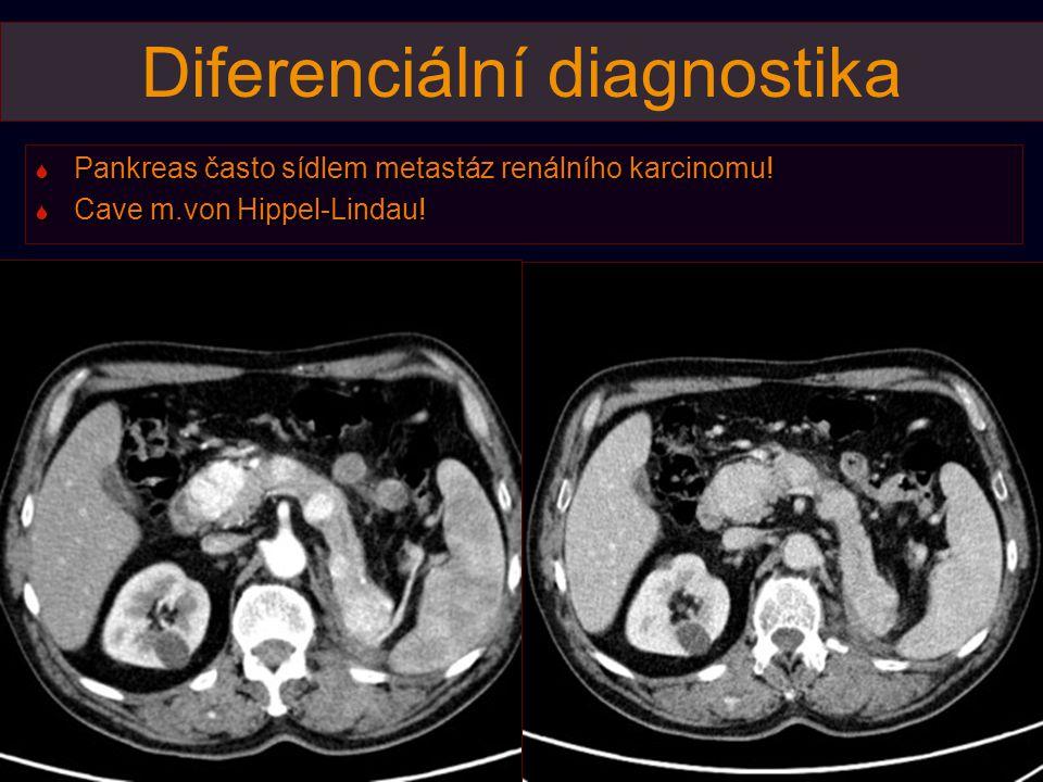 Diferenciální diagnostika  Pankreas často sídlem metastáz renálního karcinomu!  Cave m.von Hippel-Lindau!