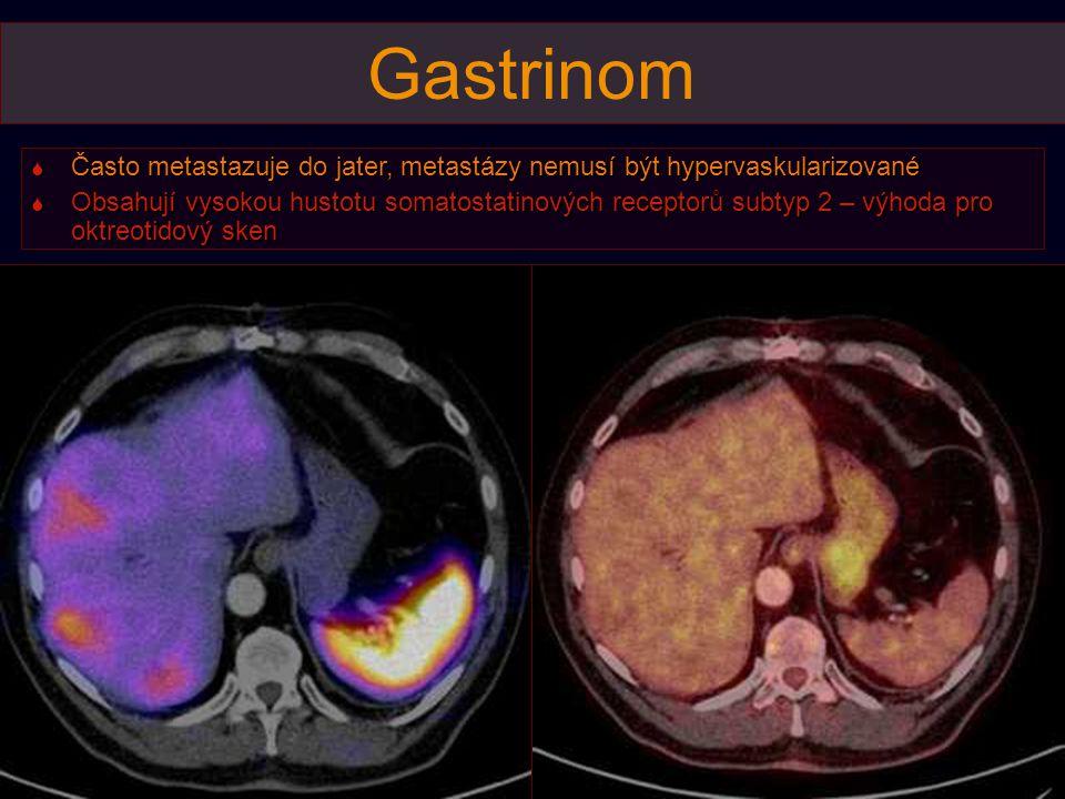 Gastrinom  Často metastazuje do jater, metastázy nemusí být hypervaskularizované  Obsahují vysokou hustotu somatostatinových receptorů subtyp 2 – výhoda pro oktreotidový sken