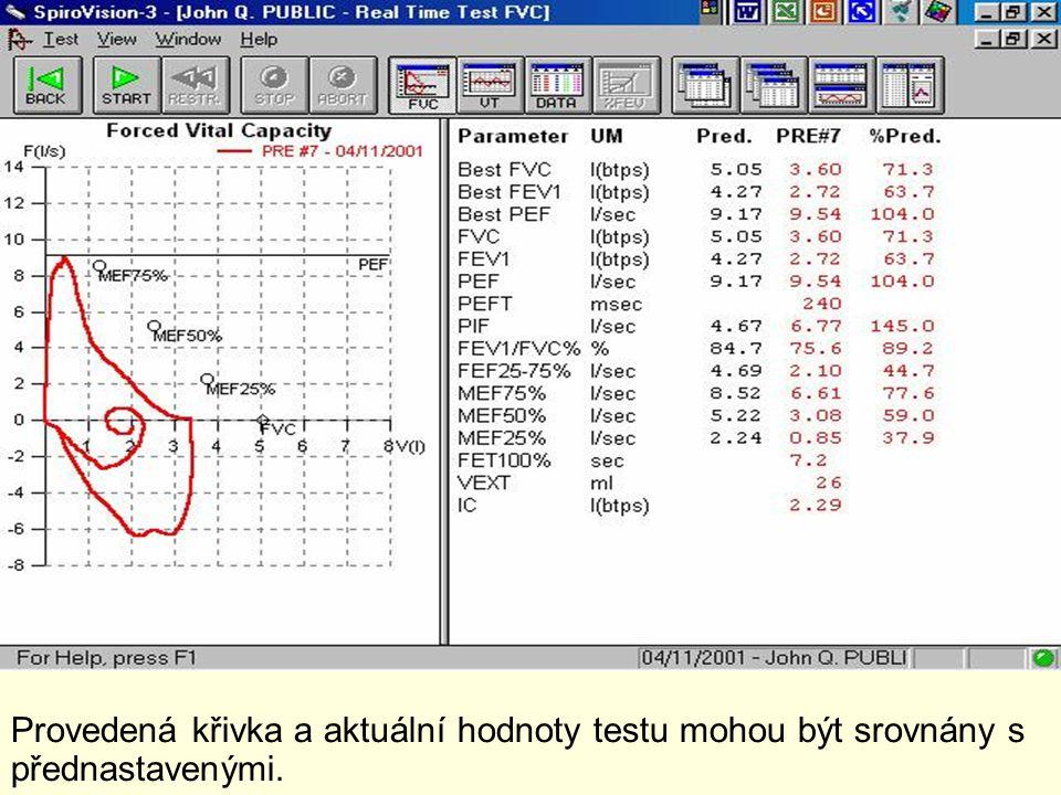 Provedená křivka a aktuální hodnoty testu mohou být srovnány s přednastavenými.