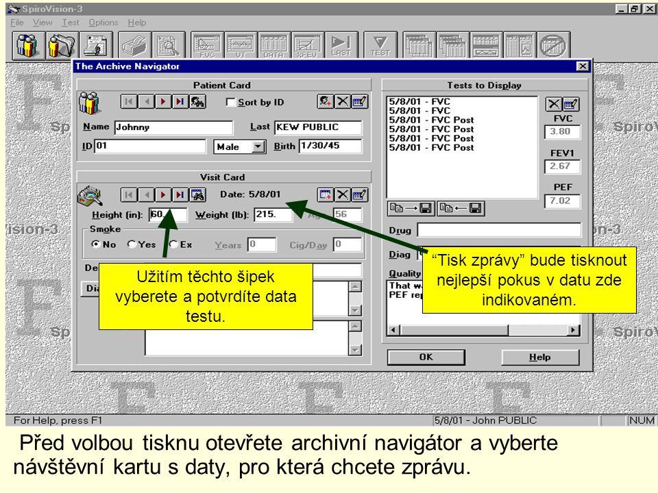 """Před volbou tisknu otevřete archivní navigátor a vyberte návštěvní kartu s daty, pro která chcete zprávu. """"Tisk zprávy"""" bude tisknout nejlepší pokus v"""