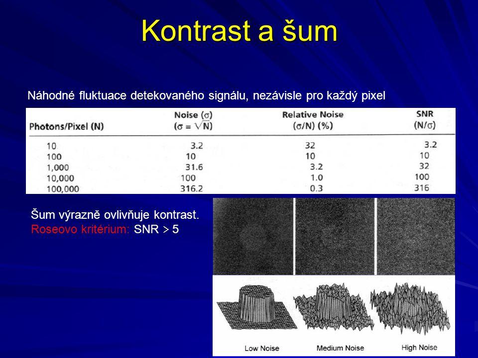 Kontrast a šum Náhodné fluktuace detekovaného signálu, nezávisle pro každý pixel Šum výrazně ovlivňuje kontrast. Roseovo kritérium: SNR  5