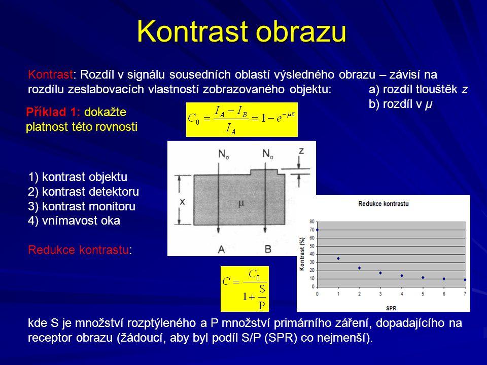 Kontrast obrazu Kontrast: Rozdíl v signálu sousedních oblastí výsledného obrazu – závisí na rozdílu zeslabovacích vlastností zobrazovaného objektu: a)