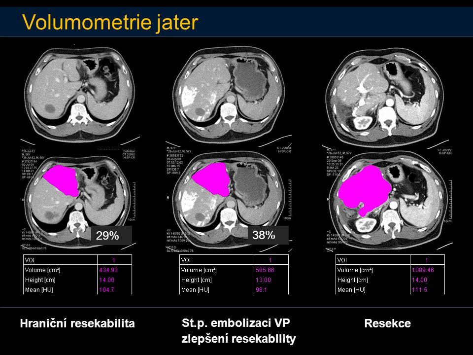 Volumometrie jater 29% 38% Hraniční resekabilita St.p. embolizaci VP zlepšení resekability Resekce