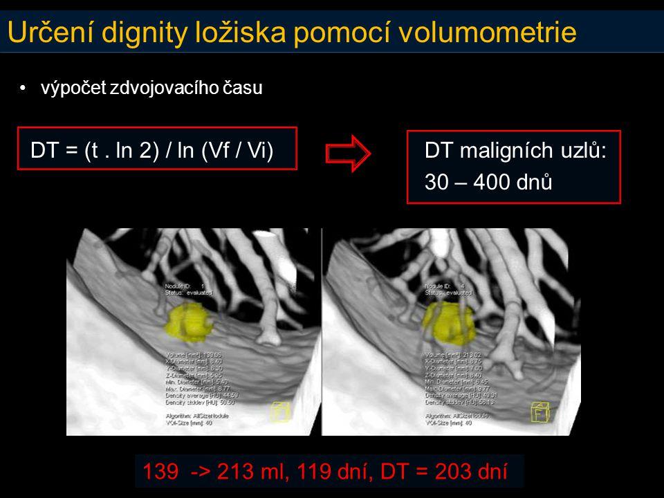 Určení dignity ložiska pomocí volumometrie • výpočet zdvojovacího času DT = (t. ln 2) / ln (Vf / Vi) DT maligních uzlů: 30 – 400 dnů 139 -> 213 ml, 11