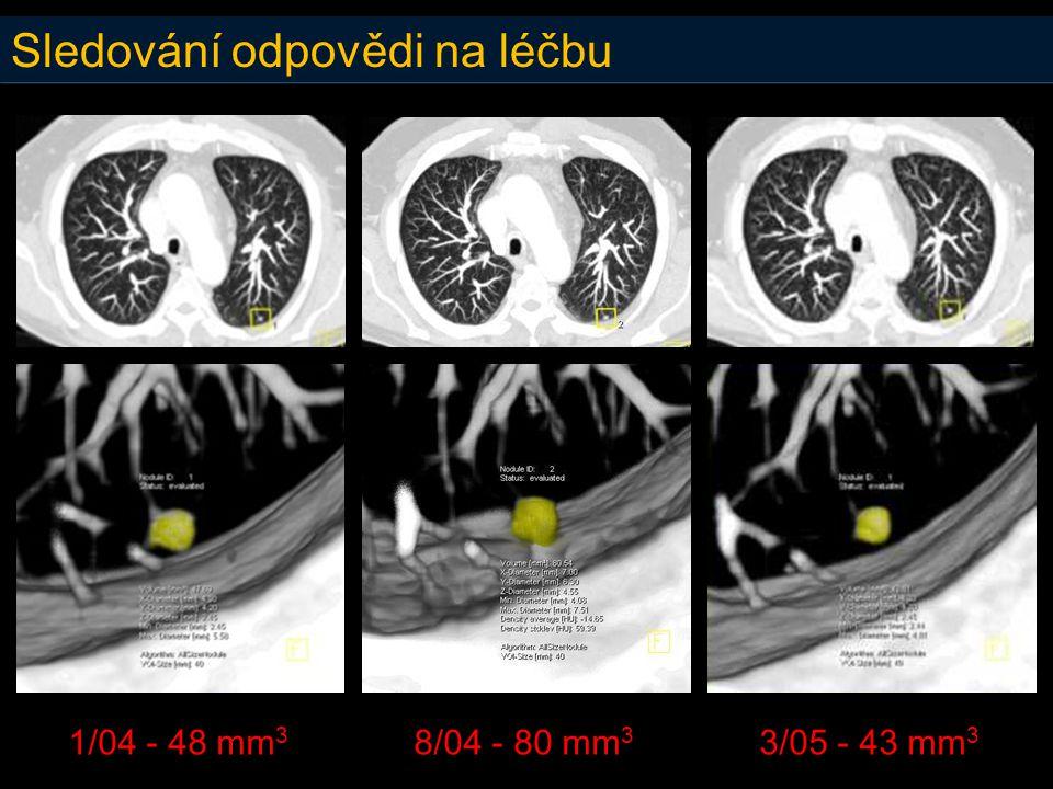 Sledování odpovědi na léčbu 1/04 - 48 mm 3 8/04 - 80 mm 3 3/05 - 43 mm 3