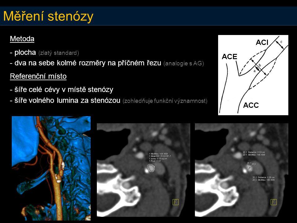 Měření stenózy Metoda - plocha (zlatý standard) - dva na sebe kolmé rozměry na příčném řezu (analogie s AG) Referenční místo - šíře celé cévy v místě