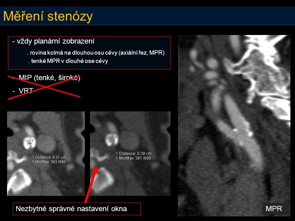 Měření stenózy - vždy planární zobrazení. rovina kolmá na dlouhou osu cévy (axiální řez, MPR). tenké MPR v dlouhé ose cévy - MIP (tenké, široké) - VRT