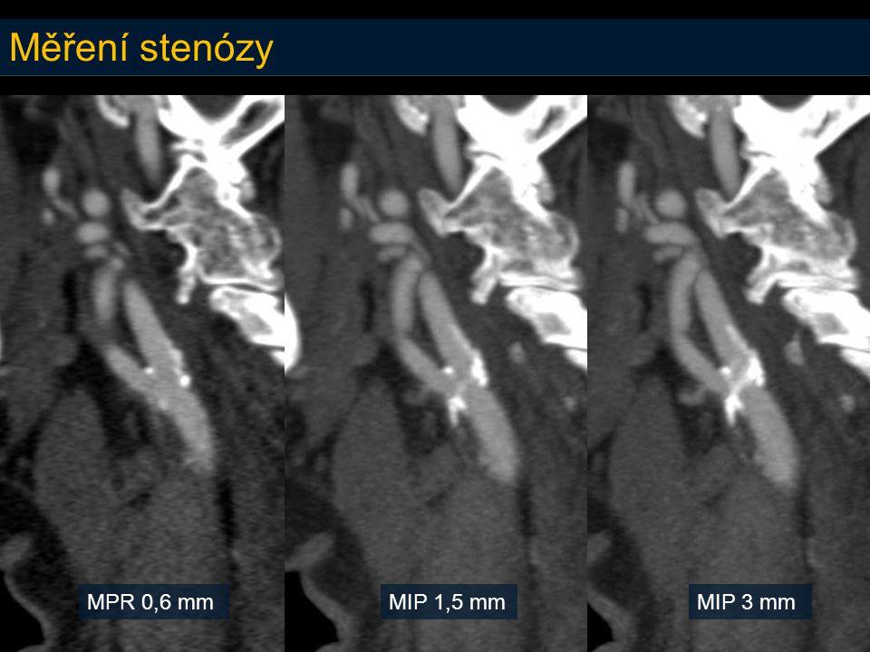 Měření stenózy MPR 0,6 mmMIP 1,5 mmMIP 3 mm