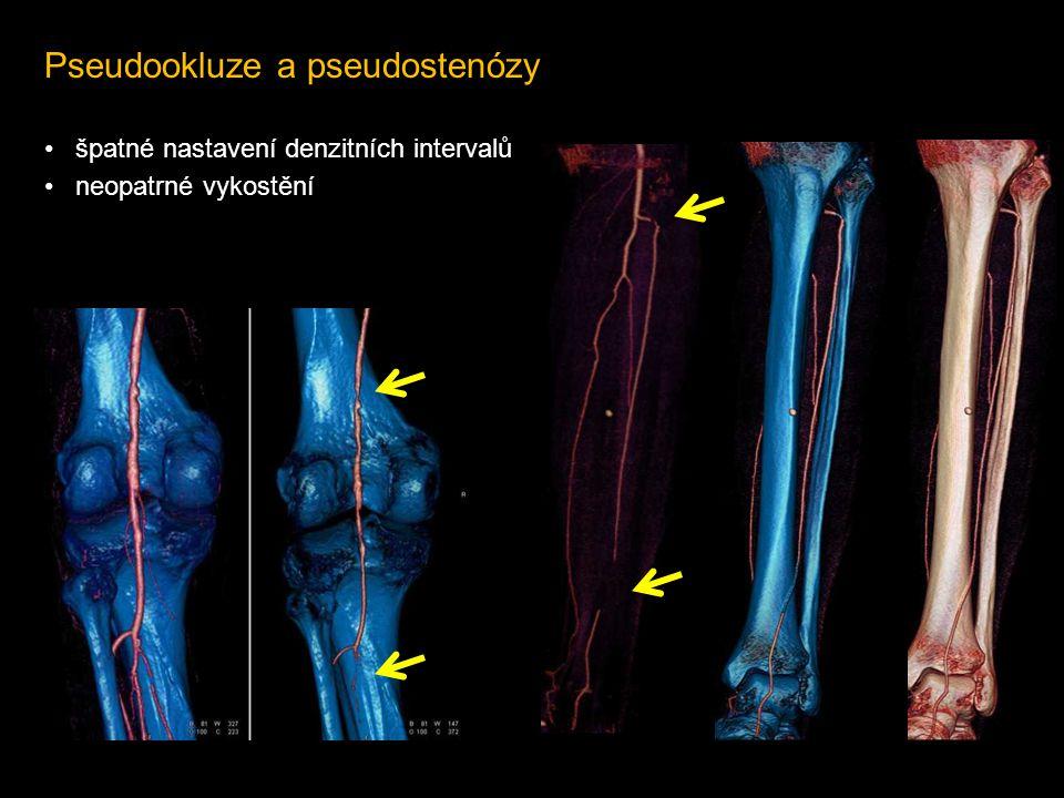 Pseudookluze a pseudostenózy • špatné nastavení denzitních intervalů • neopatrné vykostění