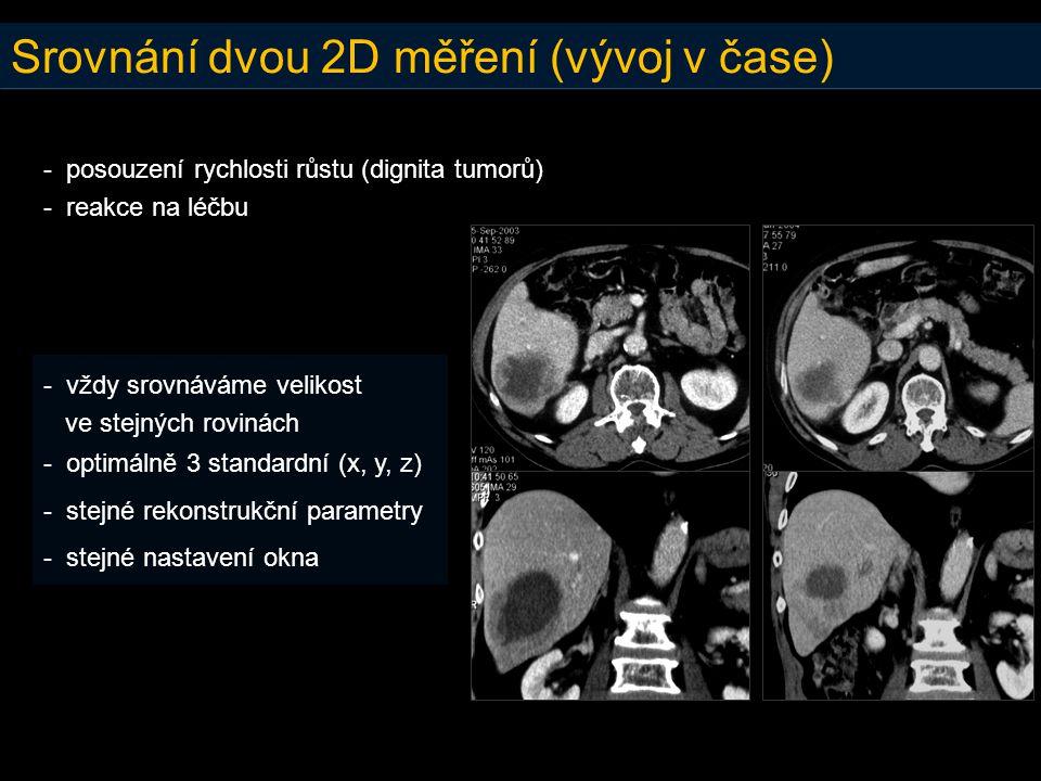 Srovnání dvou 2D měření (vývoj v čase) - posouzení rychlosti růstu (dignita tumorů) - reakce na léčbu - vždy srovnáváme velikost ve stejných rovinách