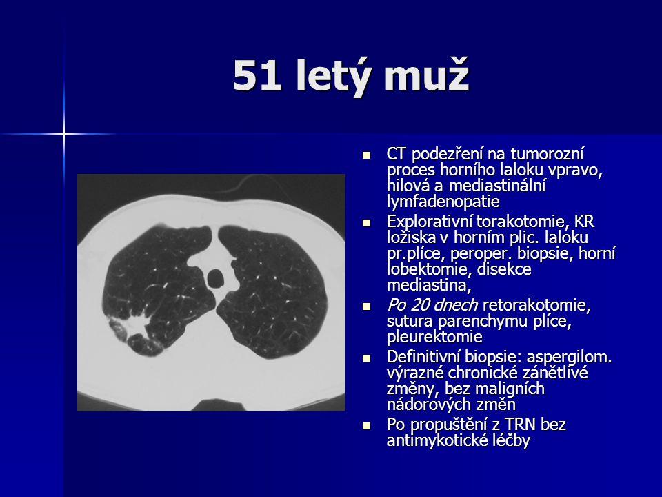 51 letý muž  CT podezření na tumorozní proces horního laloku vpravo, hilová a mediastinální lymfadenopatie  Explorativní torakotomie, KR ložiska v h