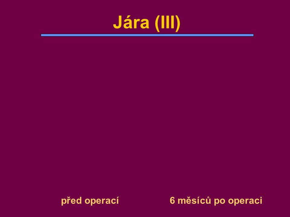 před operací 6 měsíců po operaci Jára (III)