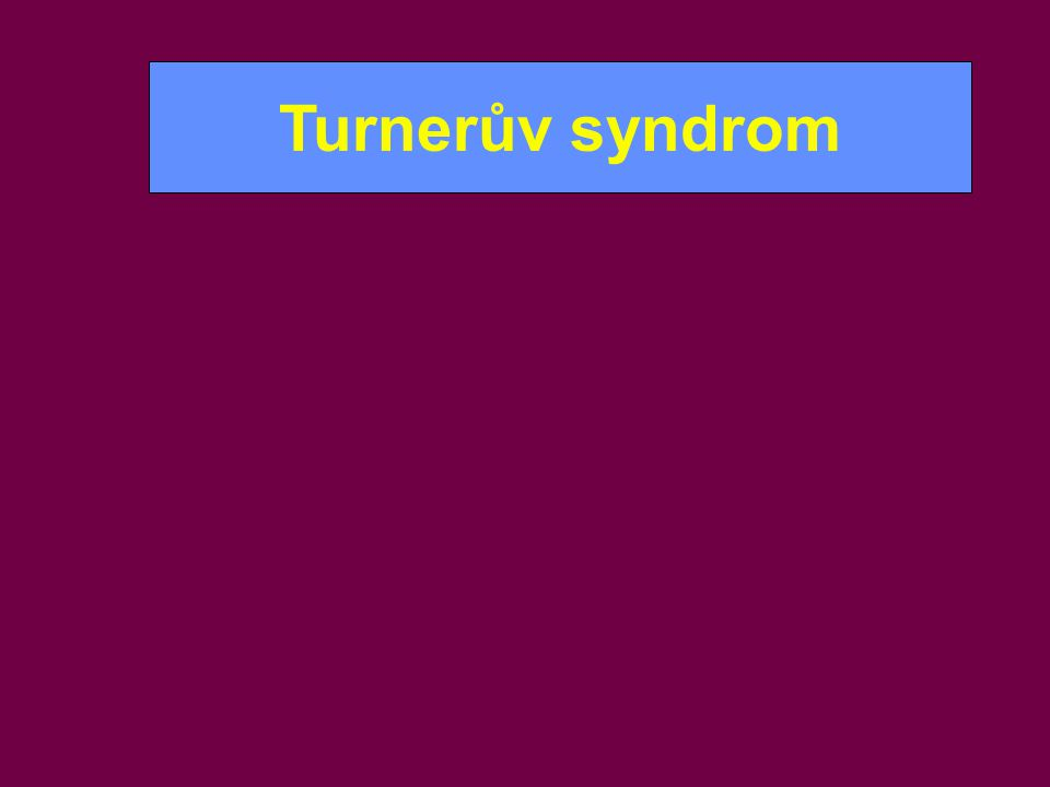 Turnerův syndrom