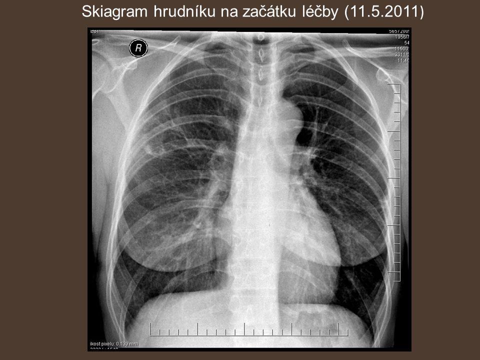 Skiagram hrudníku na začátku léčby (11.5.2011 )