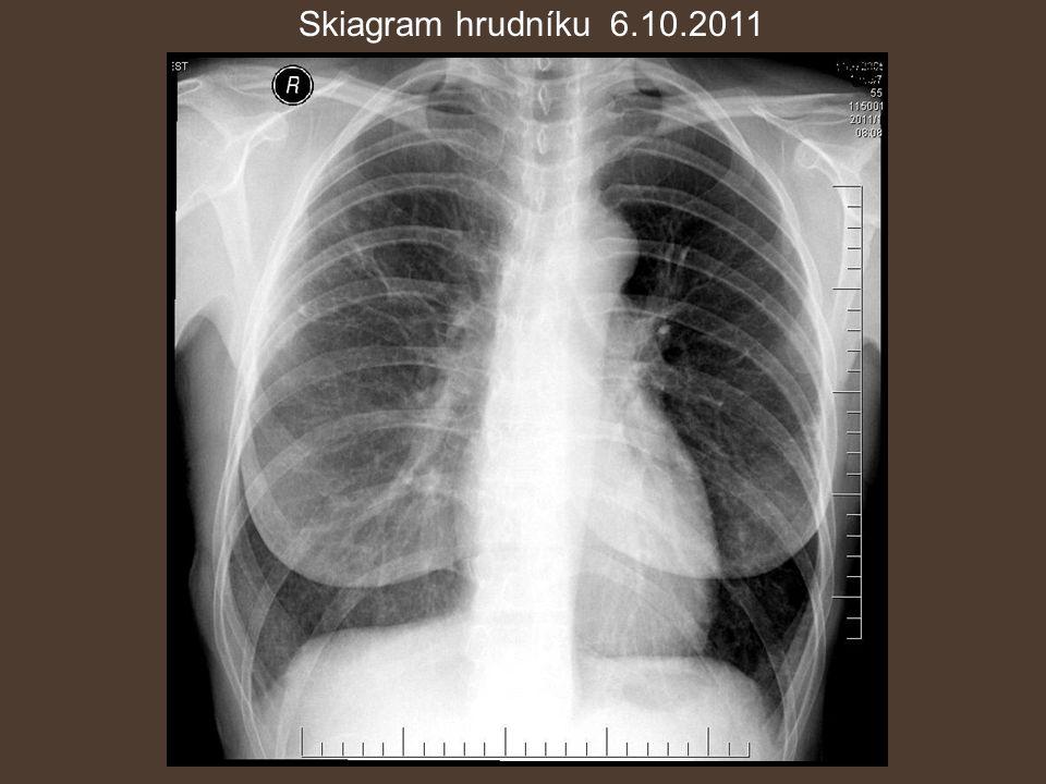 Skiagram hrudníku 6.10.2011