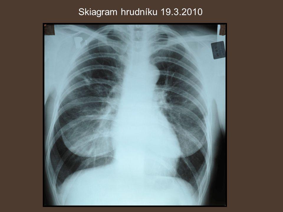 Skiagram hrudníku 19.3.2010