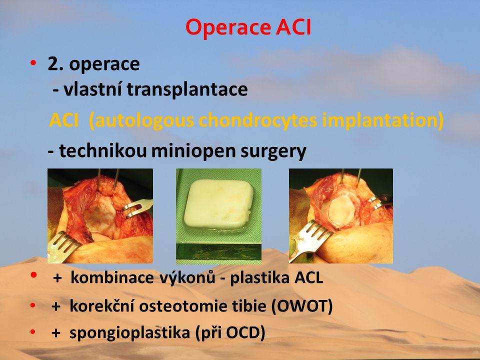 • 2. operace - vlastní transplantace ACI (autologous chondrocytes implantation) - technikou miniopen surgery • + kombinace výkonů - plastika ACL • + k
