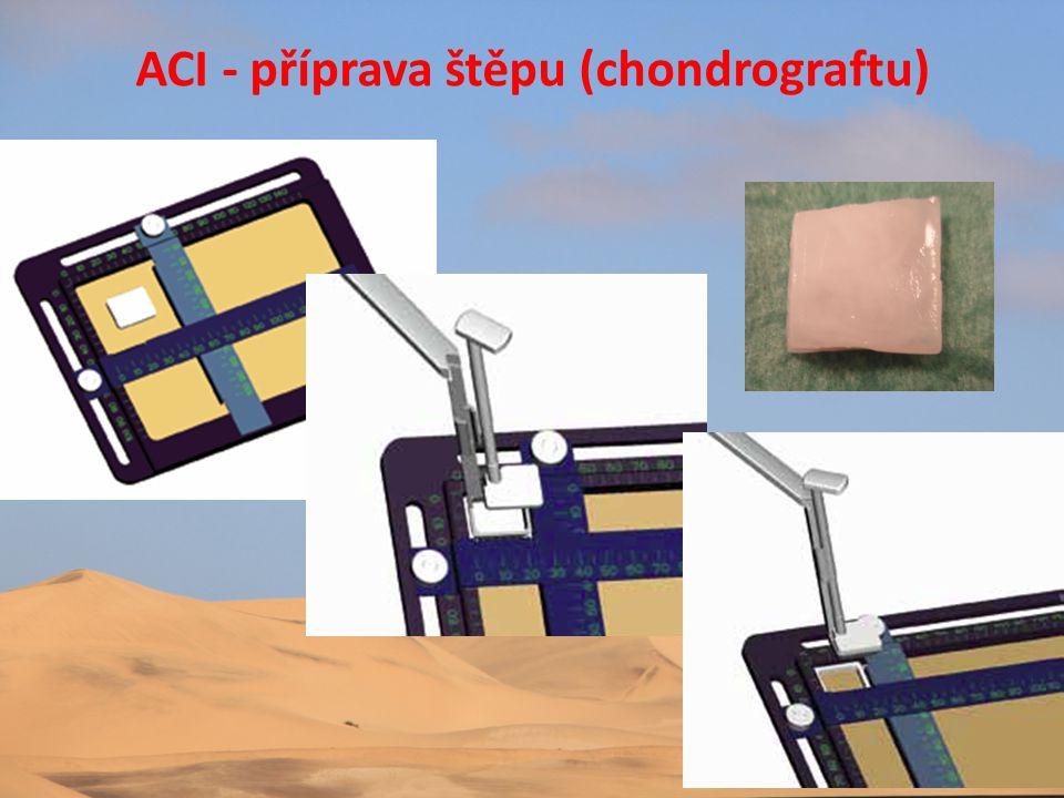 ACI - příprava štěpu (chondrograftu)