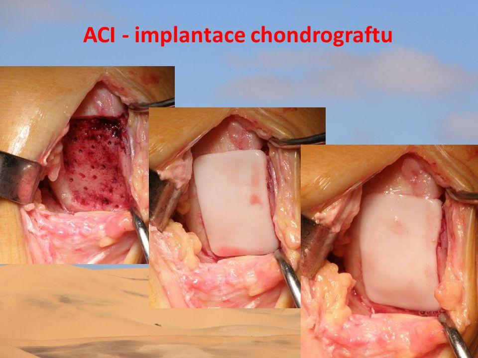 ACI - koleno: ECTAG – TU FNHK • Příklady operací • MRI před a po operaci