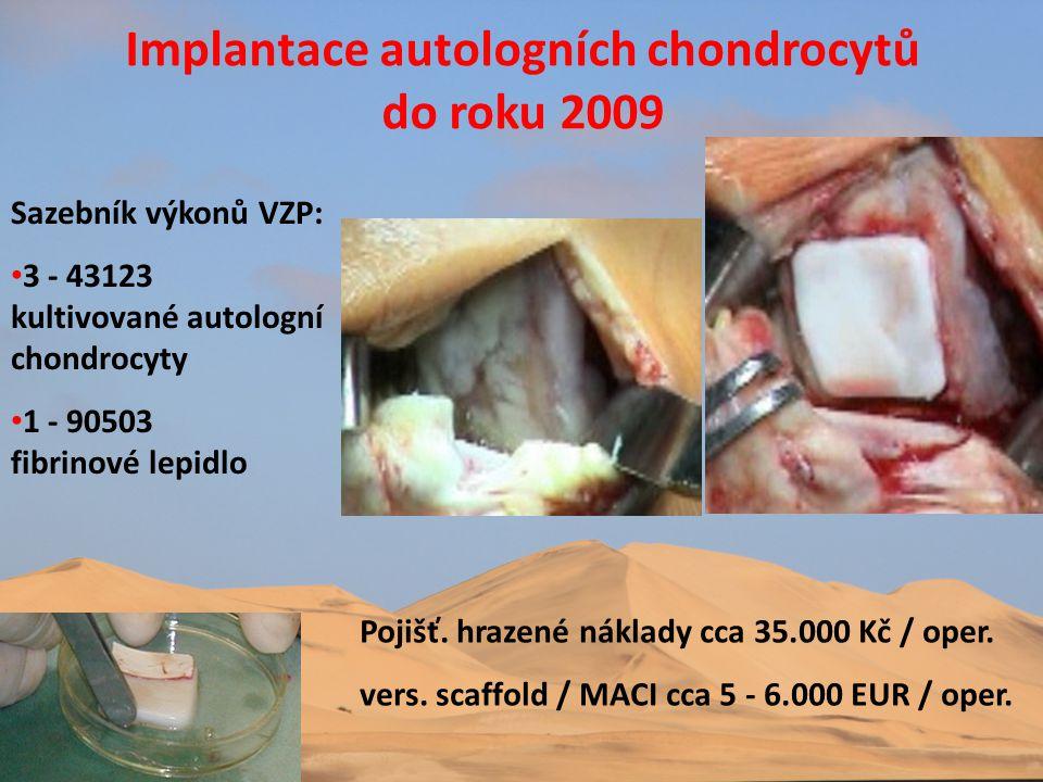 Implantace autologních chondrocytů do roku 2009 Sazebník výkonů VZP: • 3 - 43123 kultivované autologní chondrocyty • 1 - 90503 fibrinové lepidlo Pojiš