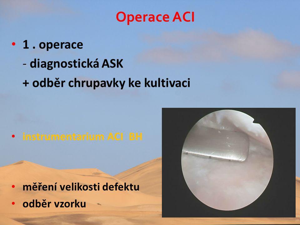 • 1. operace - - diagnostická ASK + odběr chrupavky ke kultivaci • instrumentarium ACI BH • měření velikosti defektu • odběr vzorku Operace ACI